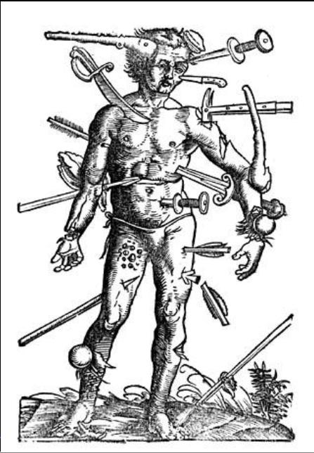 Illustrasjon for bartskjærer som behandlet utvortes sår. (fritt)